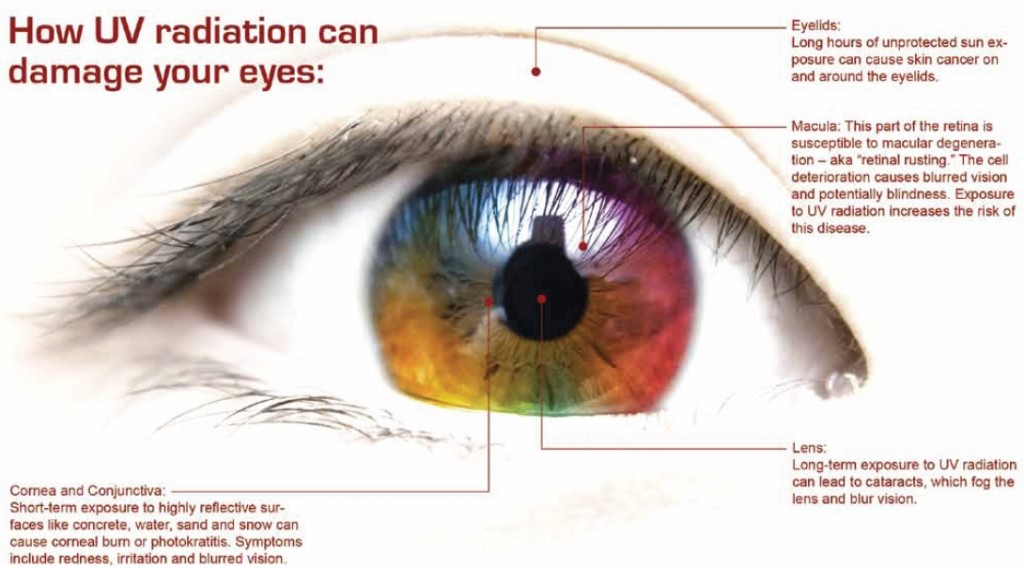 Why Eye Redness Happens and How to Treat It